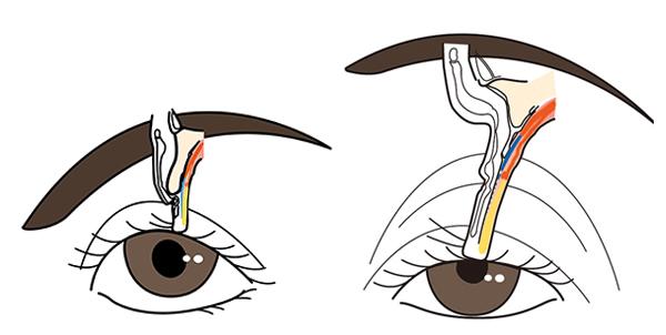 左が正常な目の状態。右が腱膜性の眼瞼下垂になった状態のイメージ