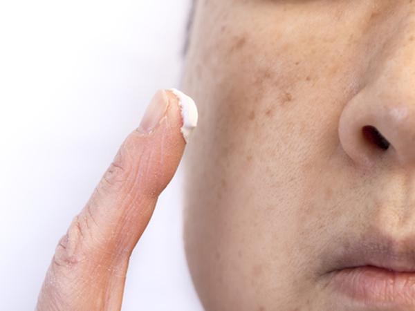 肝斑には内服や軟膏も効果的