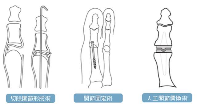 その他の外反母趾の手術の内容