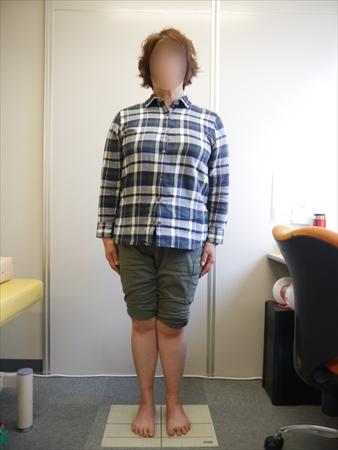 【体験談】X脚が足指ストレッチと靴選びで改善!