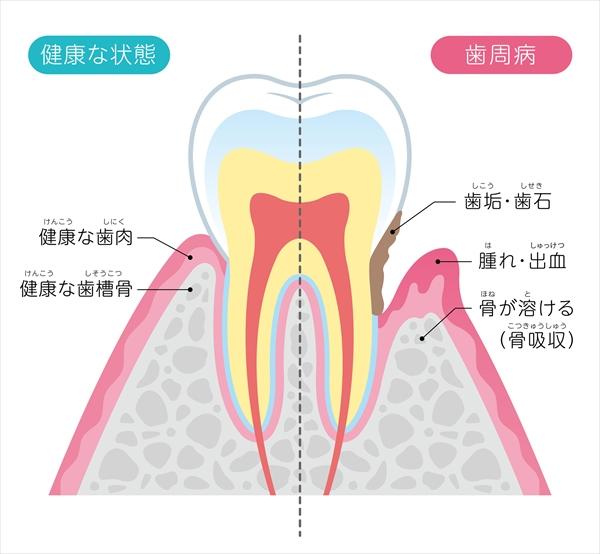 50代から歯の土台危機が一気に上昇