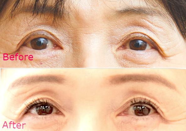 【アイメイク】Before:眉の違い&クマが目立つ→After:若々しい印象に