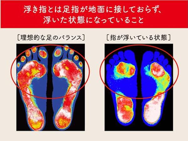 ずっと自分の足で歩ける靴:浮き指とは?