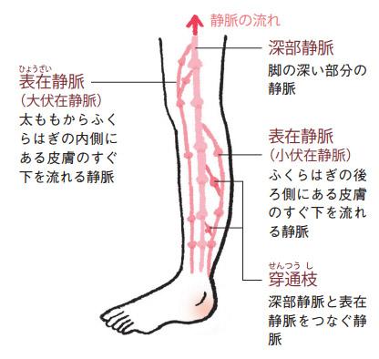 脚の主な静脈  下肢静脈瘤は皮膚のすぐ下を流れる2つの表在静脈に起こり、深部静脈には起こりません。
