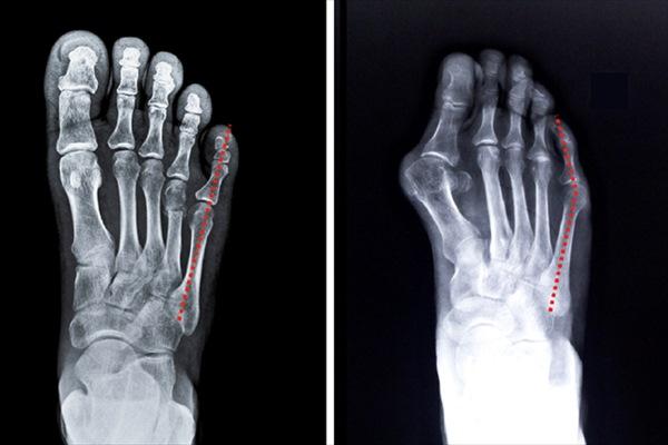 内反小趾の原因・症状は?外反母趾と何が違う?