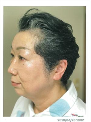 佐々木美子さん61歳 グレイヘア挑戦前の写真 横から