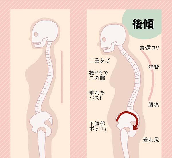 下腹ポッコリは骨盤の後傾が原因