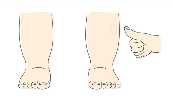 むくんで足が太くなる、残念な習慣と対処法
