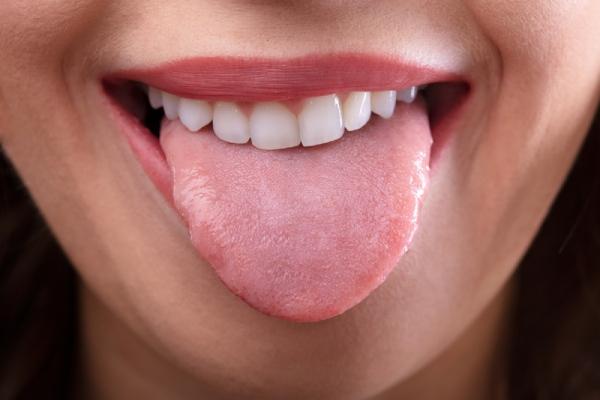 舌がキレイであること