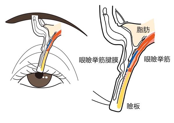眼瞼挙筋腱膜が伸びたり、瞼板から外れたりして起きる、腱膜性眼瞼下垂の仕組みを示した図。