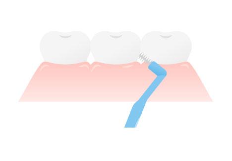 手順5:歯間ブラシを使った歯肉の清掃
