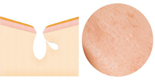 毛穴の形が楕円だったり、つながって見えることが特徴