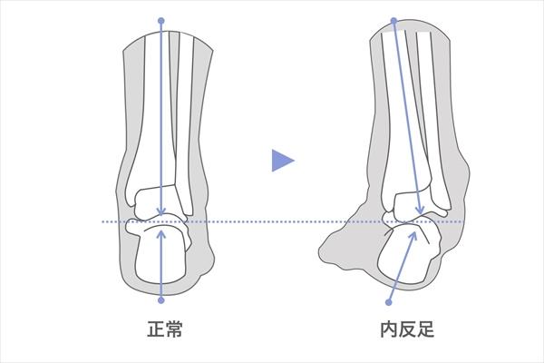 X脚の原因:内反足