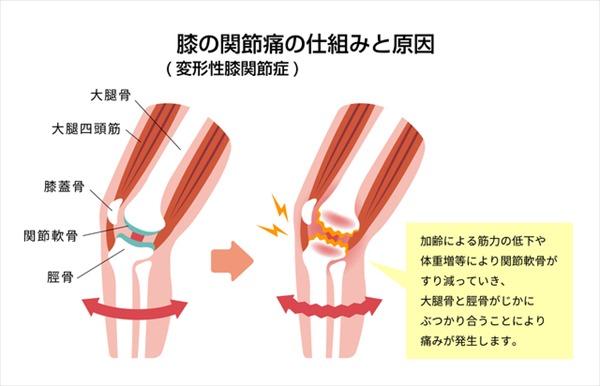 膝が痛い原因1:変形性膝関節症