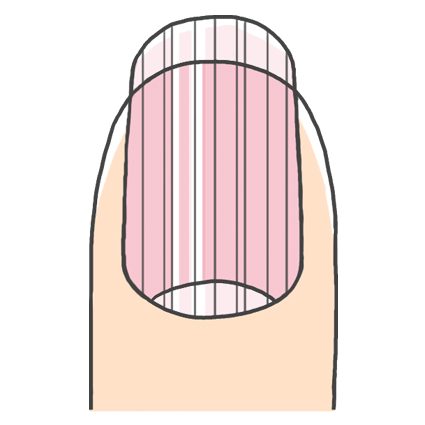 爪の縦線ができた状態