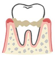 歯肉炎の状態
