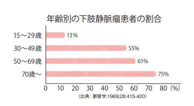 グラフ:年齢別の下肢静脈瘤患者の割合