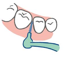 歯間ブラシの動かし方