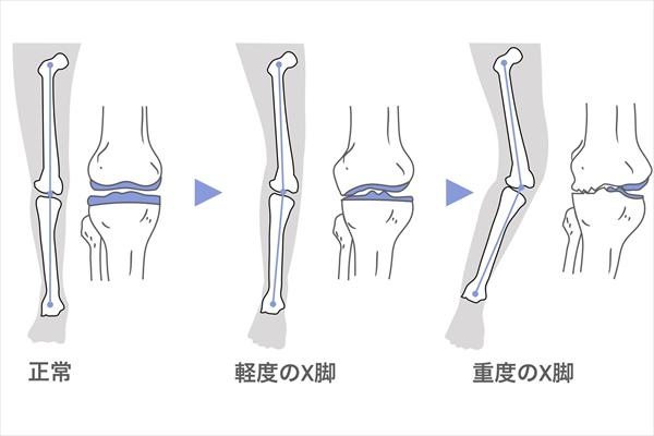 X脚の進行:軽度・重度の症状