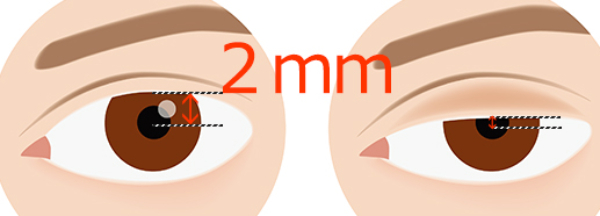 黒目の中心から上瞼のふちまでの距離が2㎜以下になっているかチェックを