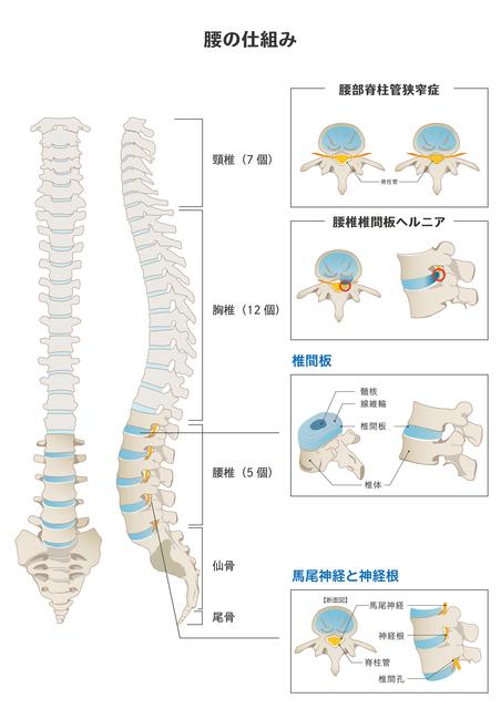 腰痛椎間板ヘルニアと腰部脊柱管狭窄症について
