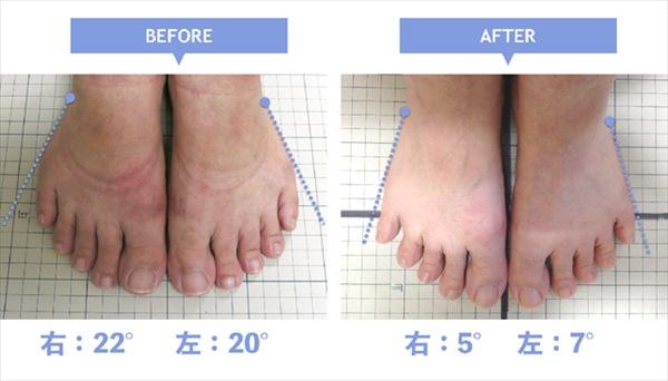 治療前後の小指の変形の比較