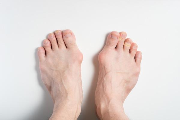 外反母趾のタイプ