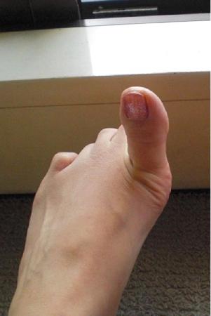 足の機能不全をチェック!足指じゃんけん「チョキ」