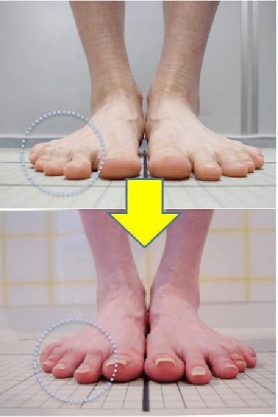体験談:足指のばしと靴下で足裏の痛みが改善!