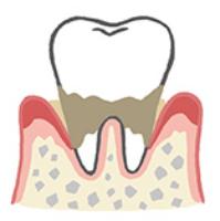 歯周炎の状態