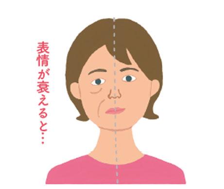 原因2:会話や活動が減り表情も姿勢も衰える