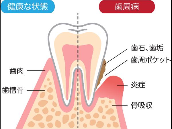 歯周病を予防する歯磨きのポイント