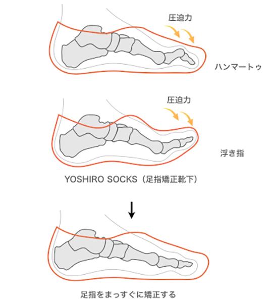 足指矯正靴下の効果