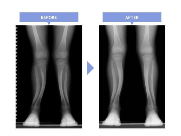 X脚の矯正結果:ストレッチ&靴選びで改善