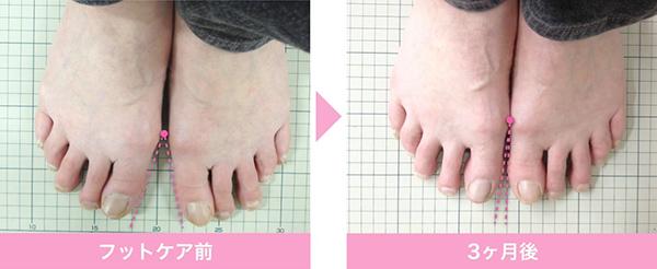 足の筋力をつけていけば十分にセルフケアで改善できる
