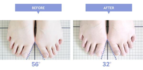 3週間で外反母趾が改善