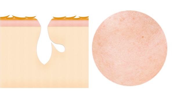 毛穴がカサついて、肌にハリがないことが特徴