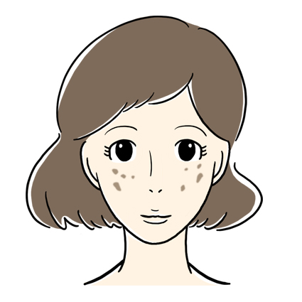 老人性色素斑 (日光性色素斑)