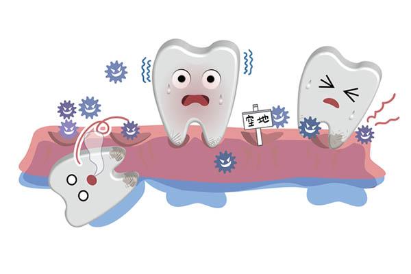 歯周病を進ませてしまう間違った習慣をまずはチェック!