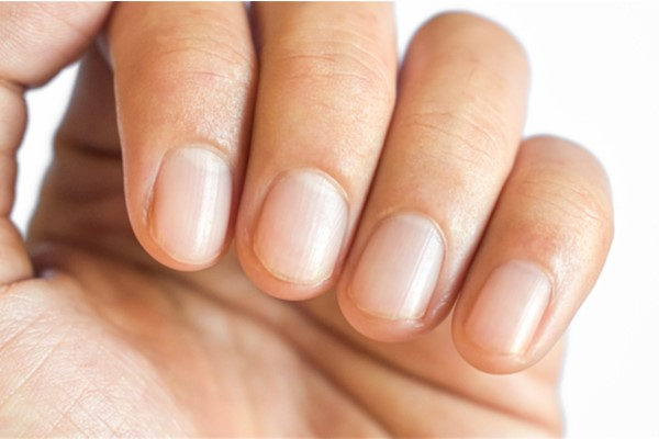 西洋医学から見た、爪の縦線・横溝・異常な色の病気のサイン