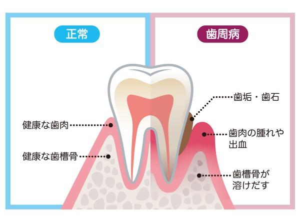 歯周病を治すことは難しいが、進行を止めることはできる