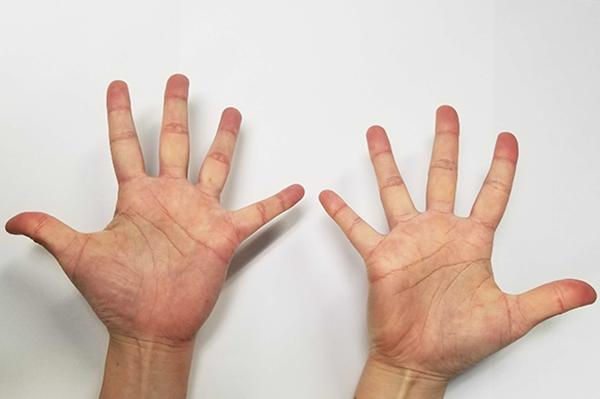 症状の改善&ばね指の予防におすすめのストレッチ方法
