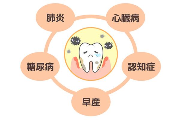 歯が抜けるだけじゃない!歯周病は全身に悪影響をもたらす