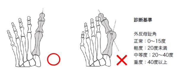 外反母趾の診断基準とレントゲンのイメージ