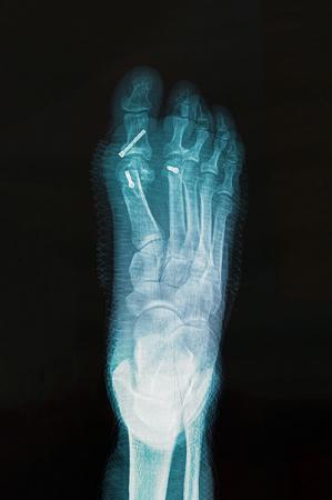 重症の外反母趾