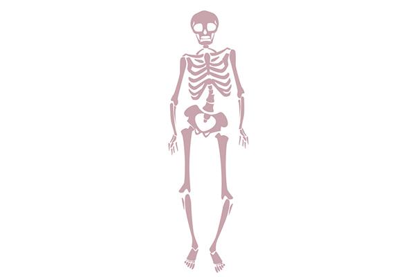 骨盤が前に出て「がに股歩き」になっているイラスト