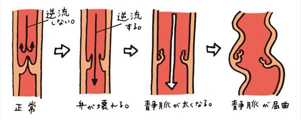 下肢静脈瘤の症状の進行