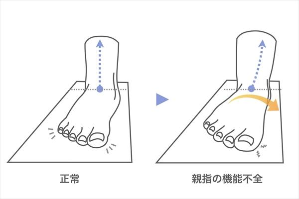 X脚の原因:親指の機能不全