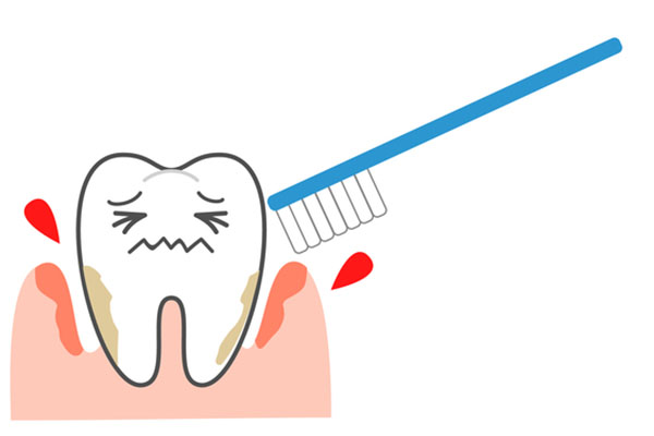 歯磨きで歯周病は治せるもの?