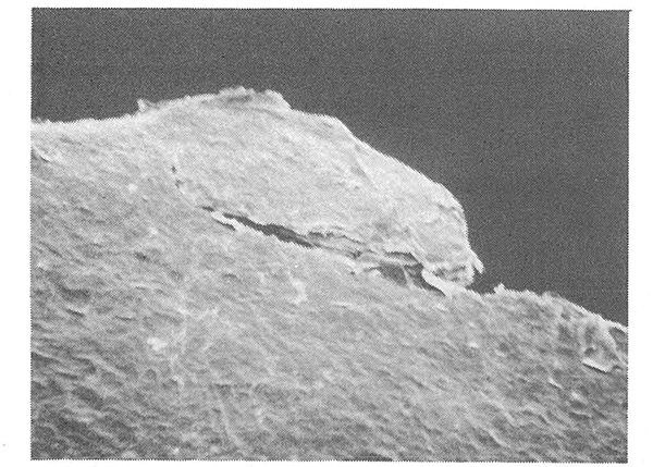 写真4「温水浸漬5分あとに爪切りで切った爪」(走査型電子顕微鏡200倍で撮影) 参照:FCG LABO 22号 19870520発行